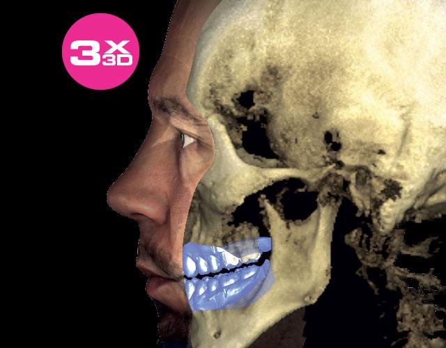 3X 3D (Google)
