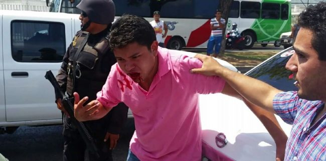 Ube driver injured in clash with taxi drivers at Merida International Airport May 25. (PHOTO: yucatan.com.mx)