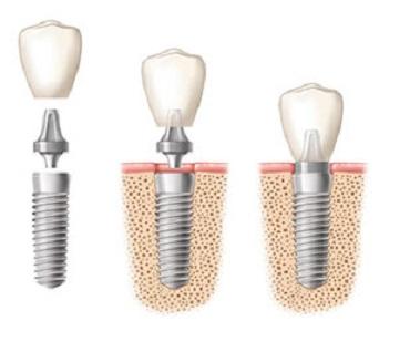 Dental implant procedure (Photo: CODY)