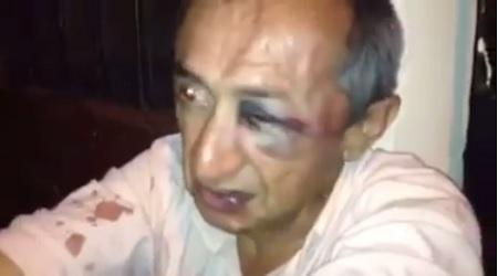 Beaten Uber driver Carlos Ramirez (Photo: Telesur)