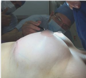 Breast Augmentation (Photo: JE Lixa)